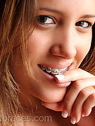 Beauty and braces Free Gallery